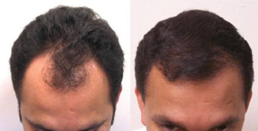 Rýchla transplantácia vlasov s NeoGraft bez bolesti a jaziev ... 89381d378f8